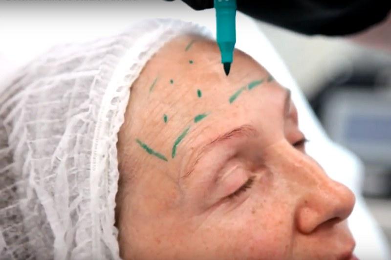 Ботулинотерапия в Киеве, инъекции ботокса - студия Пастура 3