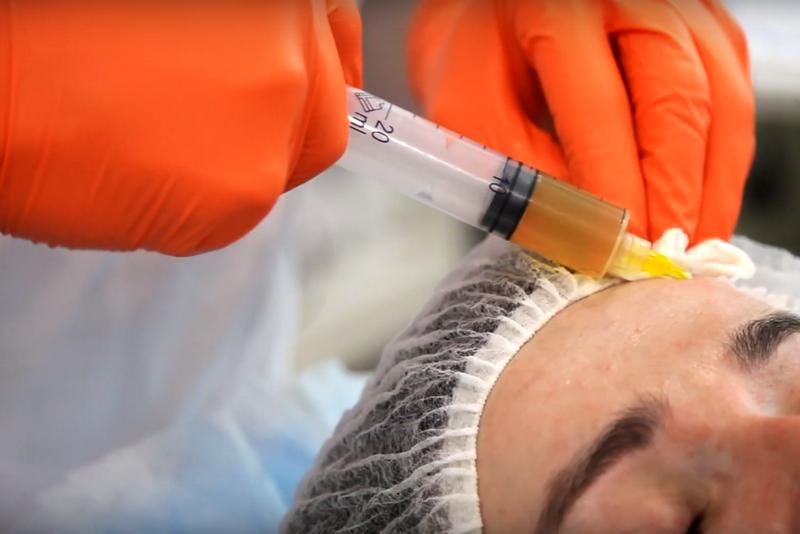 Правила ухода за кожей после инъекционной косметологии от Wellness Studio «Pastura»