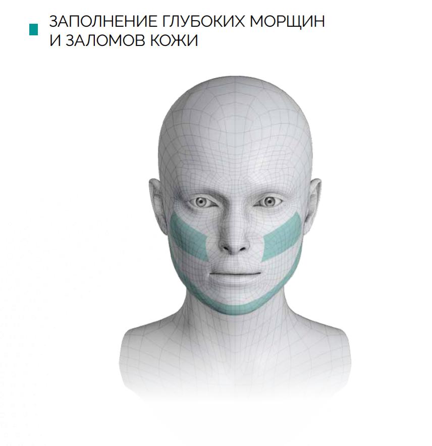 Контурная пластика филлер в Киеве Гиалуаль Hialual студия красоты Пастура 6
