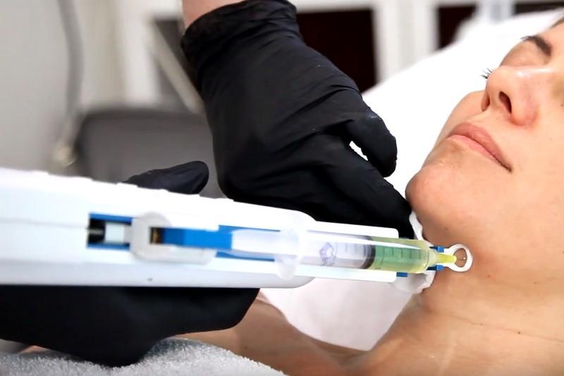 Мезотерапия лица и тела в Киеве - Wellness Studio PASTURA 1
