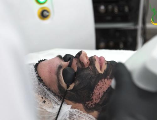 Карбоновый пилинг – комфортные чистка, омоложение и оздоровление лица и тела в Киеве